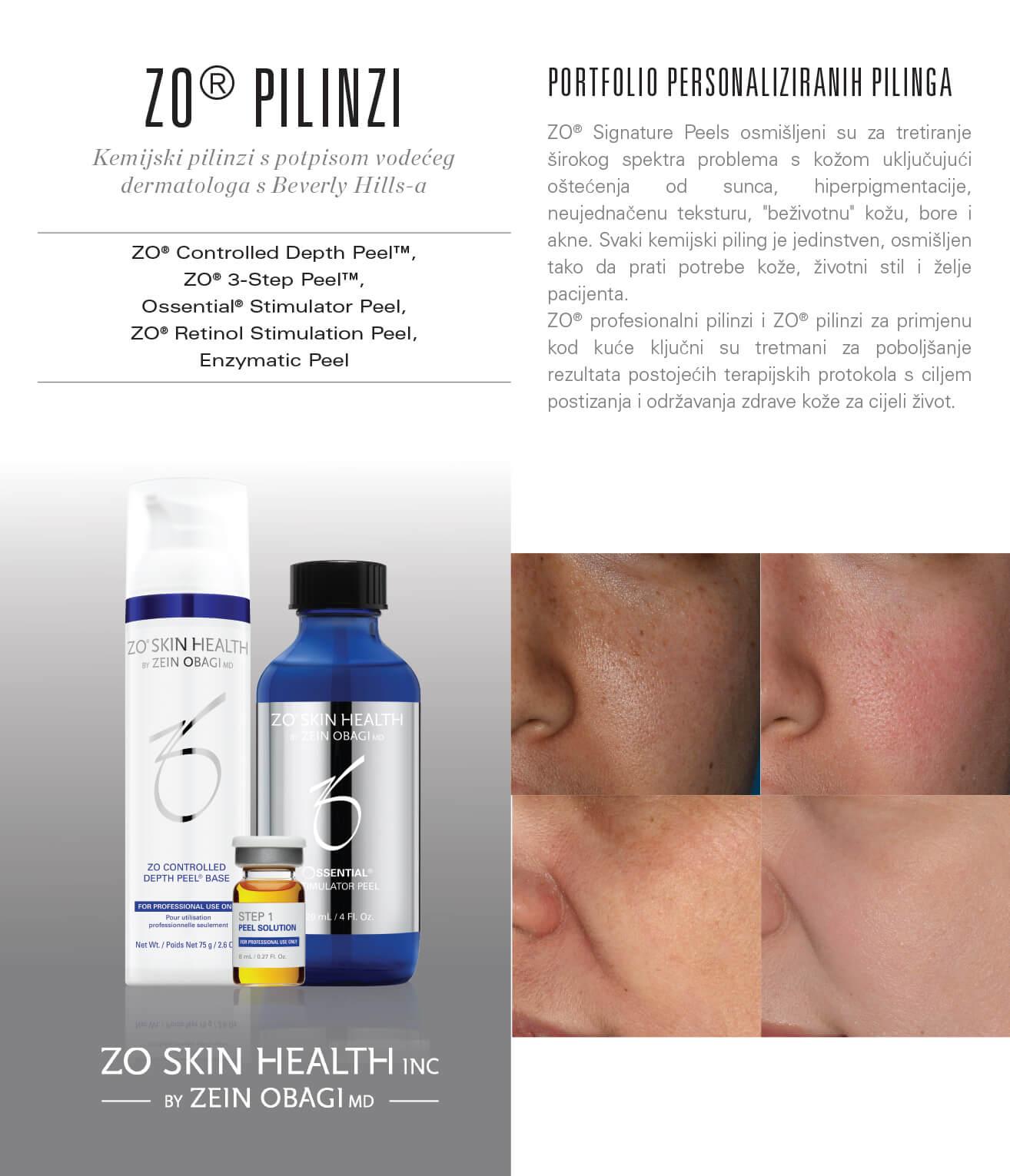 ZO_Peel_Portfolio_HR